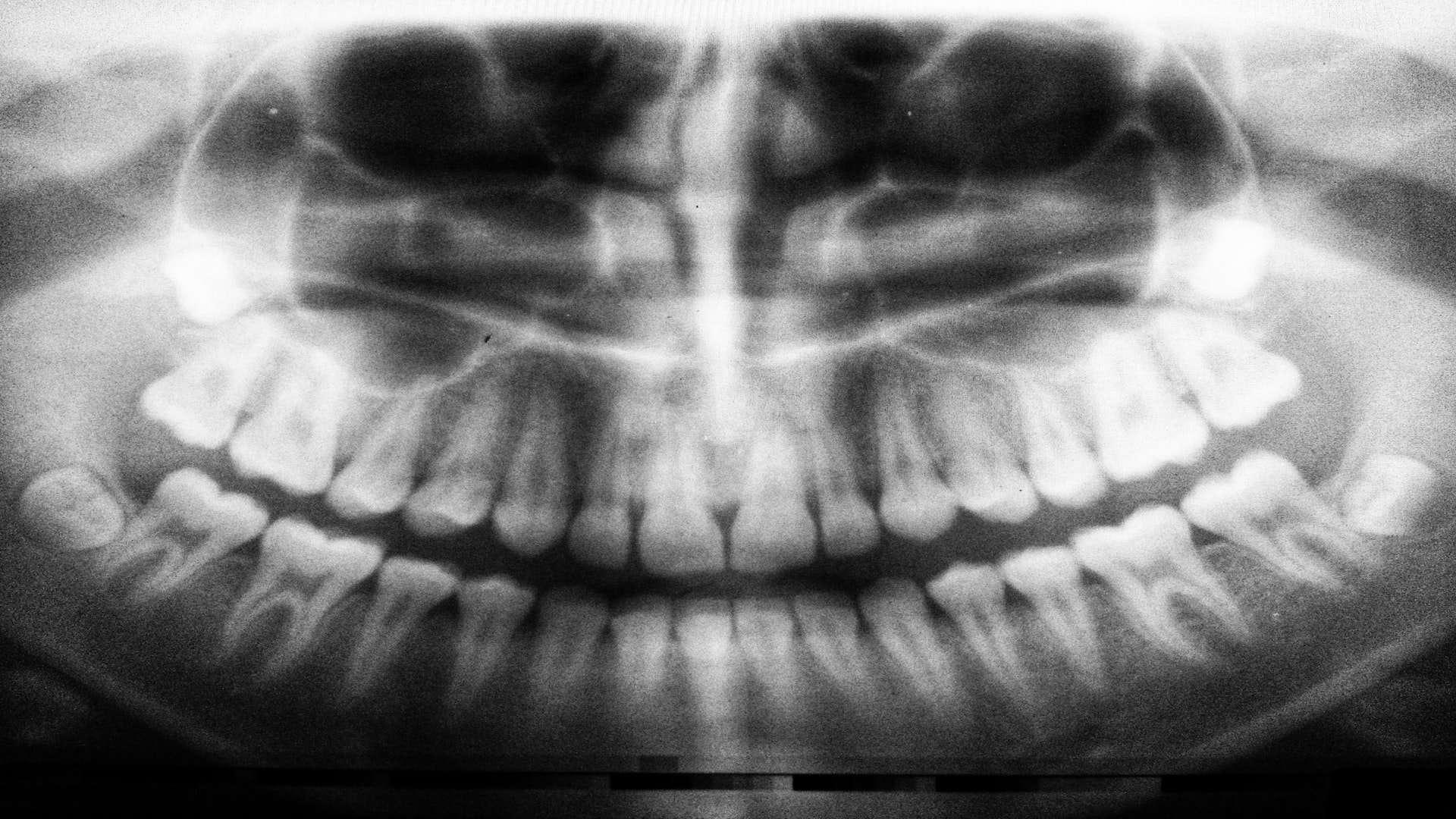 dental_scans