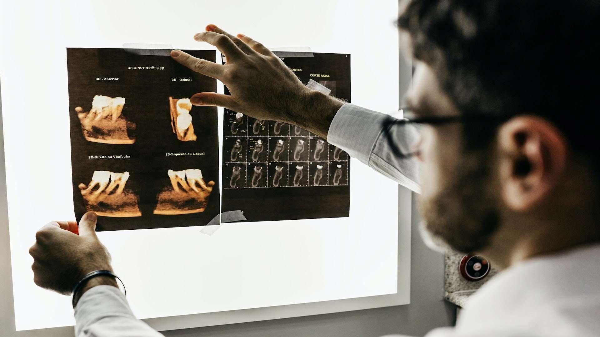 dental_x_rays