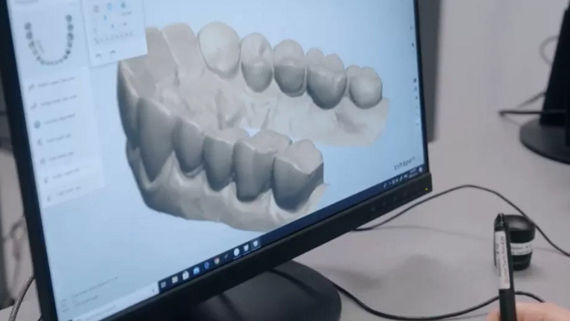3D Teeth Structure